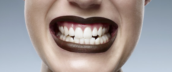 Huffington Post – Teeth Whitening for Teens