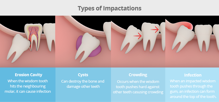wisdom teeth impactation